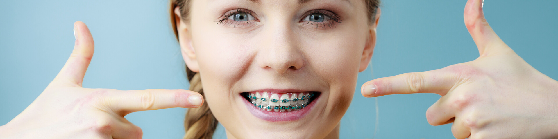 Benefits Of Clear Braces For Adults