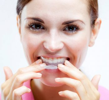Why You Should Protect Your Teeth With A Mouthguard During Exercise