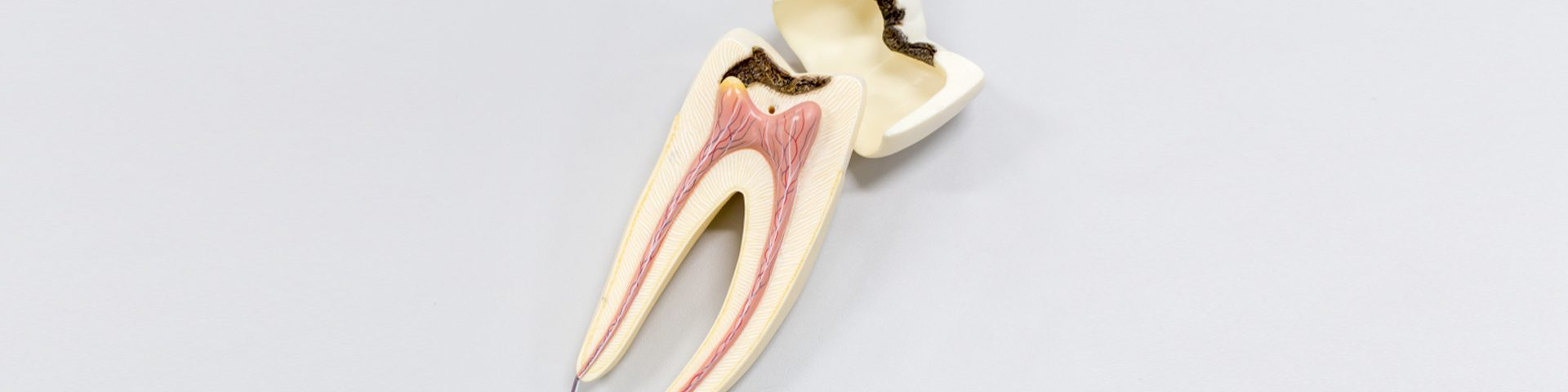 Root Canal: Dangerous or Just Misunderstood?