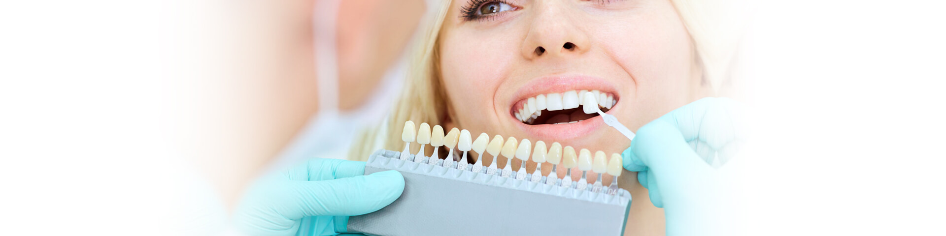 How to Decide if Dental Veneers are the Right Choice For You