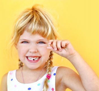 Teeth Extraction Explained in Easy Steps
