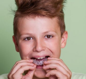 Types of Mouthguards and Their Purposes